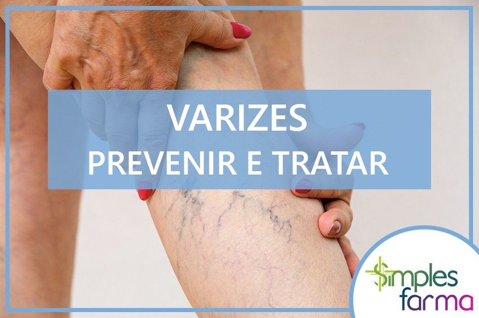 Varizes: Prevenir e Tratar