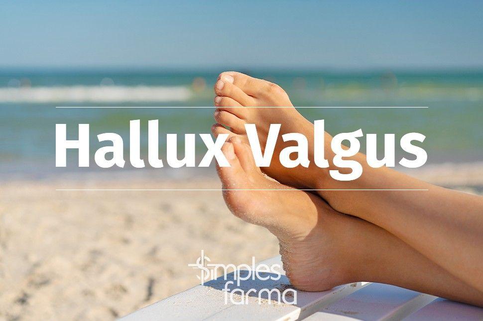 Hallux Valgus - Joanetes